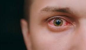 علامات خطيرة تظهر في العين كدليل على ارتفاع الكوليسترول في الدم