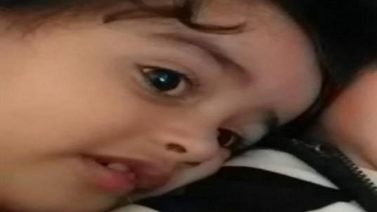 مشهد مؤثر لطفلة تفحمت جثتها إثر قصف حوثي في اليمن