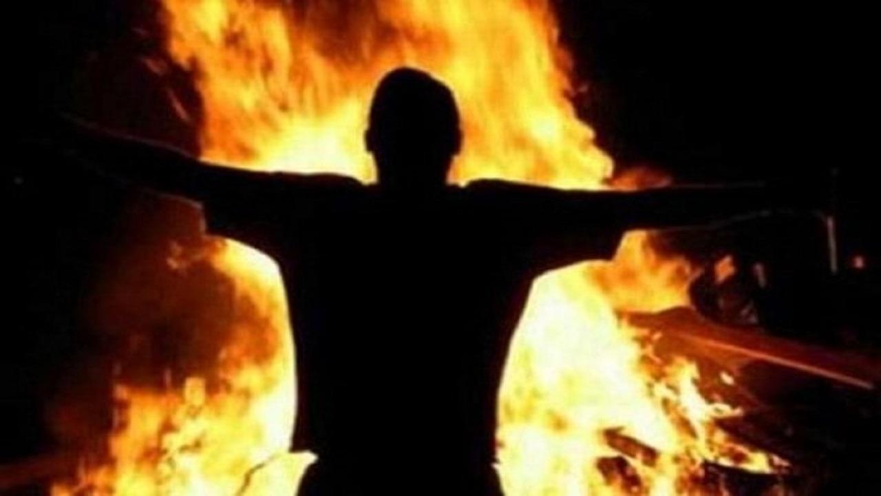شاب يشعل النيران في شقيقه لخلافات مالية