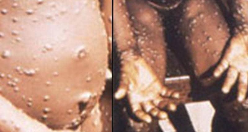 إكتشاف أول إصابة بجدري القردة النادر في تكساس