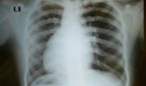 امرأة تكتشف أن قلبها على الجانب الأيمن بدلا من الأيسر