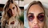 امرأة تتعرض للضرب المبرح من زوجها حتى فقدت جنينها