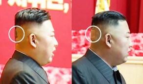 ظهور زعيم كوريا الشمالية بكدمة وضمادة الجروح على رأسه