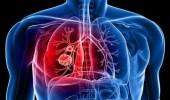 ابتكار علاج جيني يساعد في منع انتشار سرطان الرئة