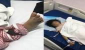 طفلة تتعرض للدغة أفعى سامة في نجران