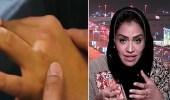 استشارية : المملكة من أفضل دول العالم في علاج البهاق ولدينا علاجات من أيام الفراعنة (فيديو)