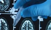 """علماء يكتشفون أن الإصابة بـ"""" الزهايمر"""" قد تنتج عن اضطرابات في الكبد"""
