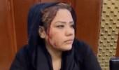 الاعتداء على ناشطة أفغانية طالبت بإنصاف المرأة