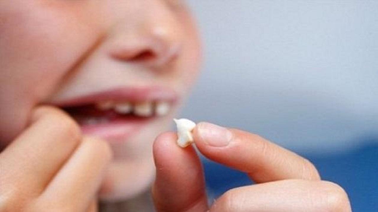 نصائح تسعفك إذا سقط أحد أسنانك فجأة