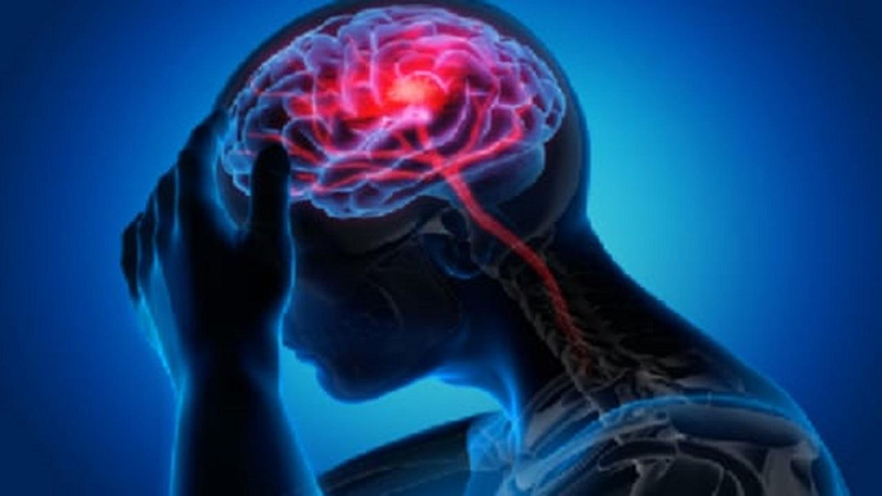 علامة تشير إلى خطر حدوث نزيف دماغي