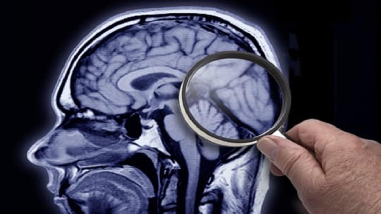 علماء: مرض الزهايمر قابل للاكتشاف قبل ظهور الأعراض عبر اختبار بسيط