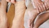 علامات تظهر على الساق تشير لارتفاع الكوليسترول