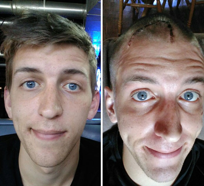 NTD Before After Pics Of People Who Beat Cancer11 -