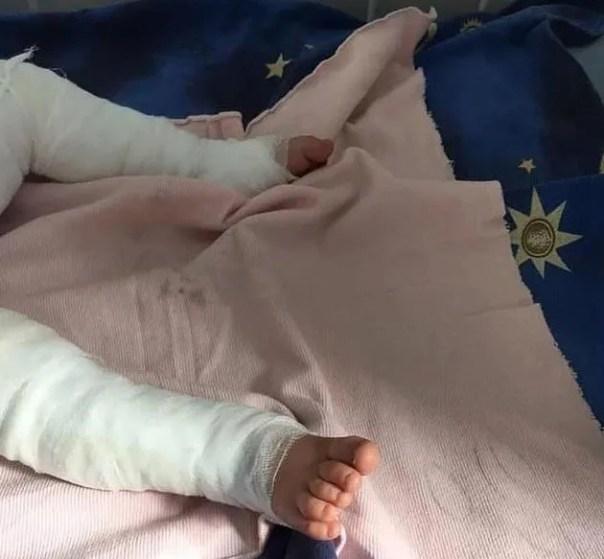Murió un bebé luego de caer en una olla hirviendo | Vía País