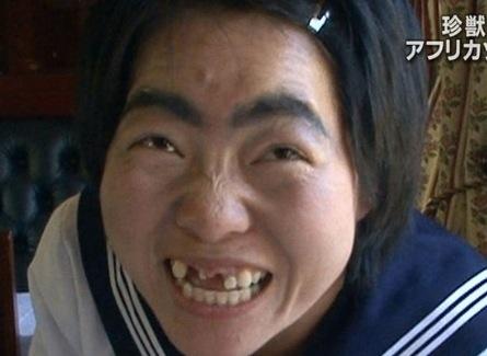 芸能人の歯 イモトアヤコ