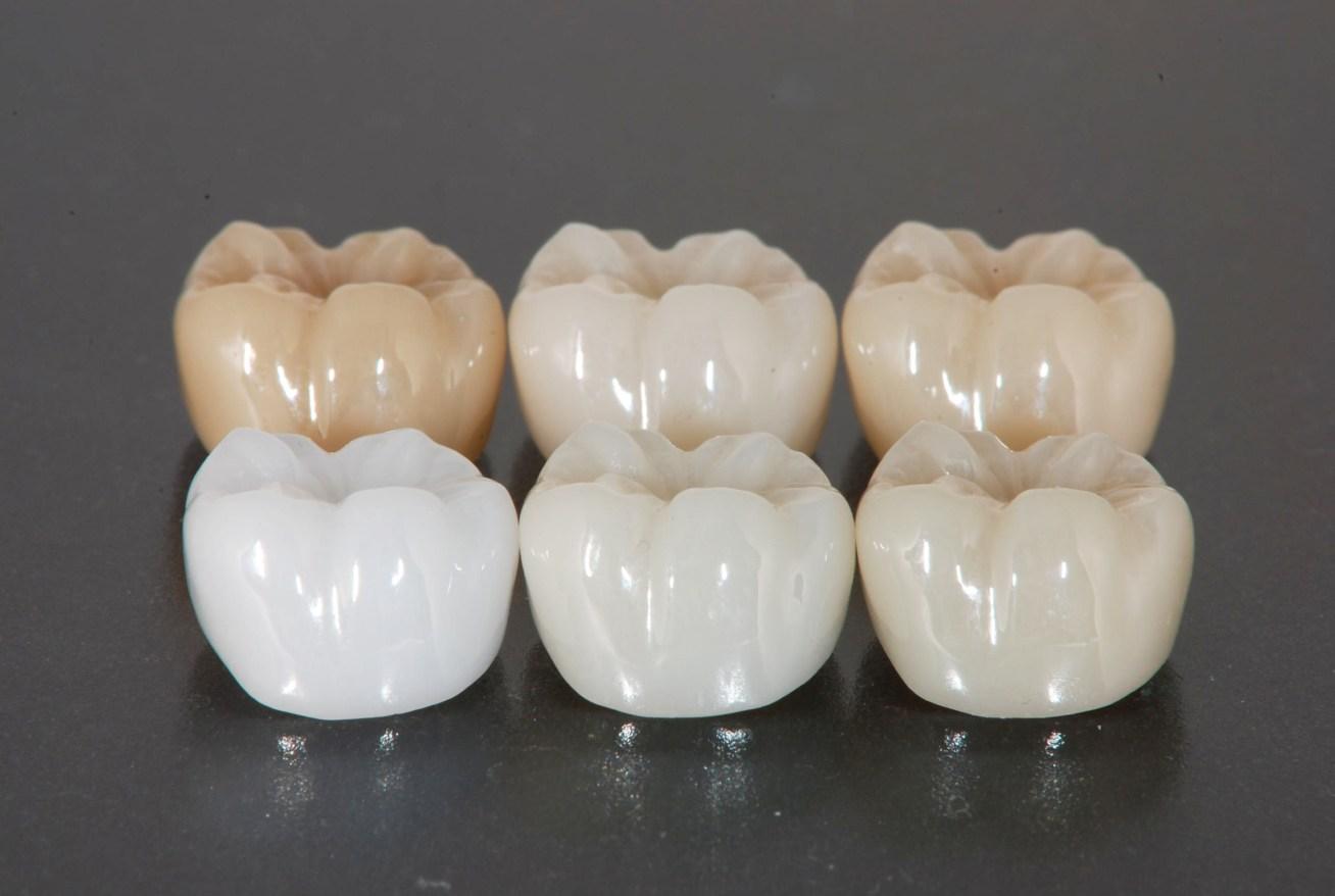 芸能人の歯 ジルコニア