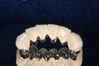 芸能人の歯 メタルボンド