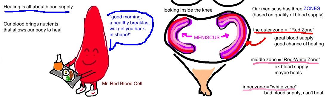 Knee - Meniscus Tear — Bone Talks