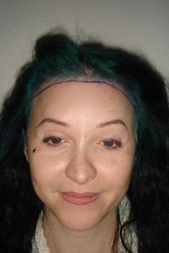 adele-deane-hair-transplant.jpg