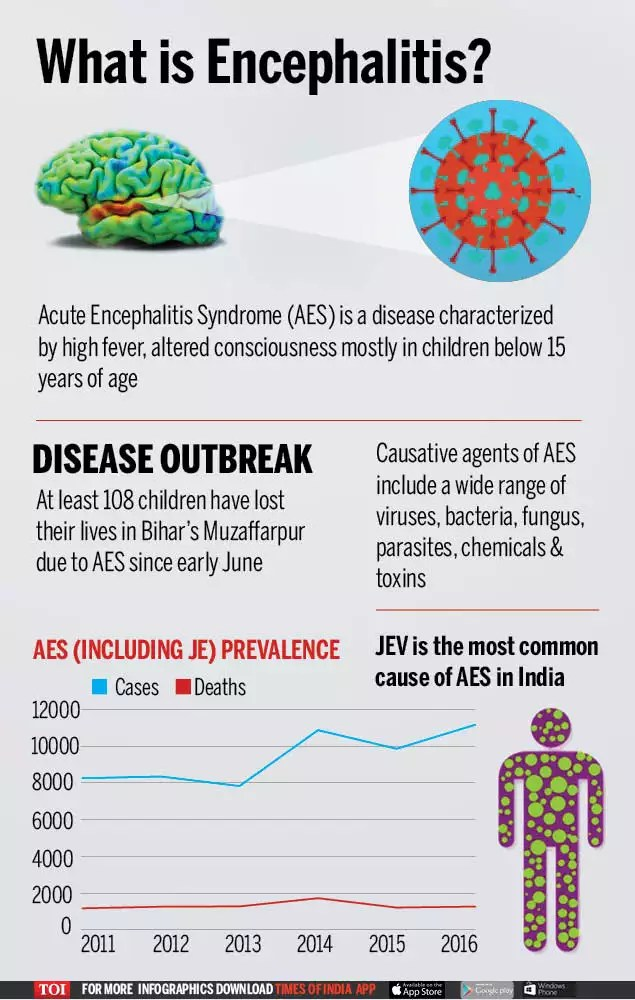 Infographic: Encephalitis: All you want to know | India News ...