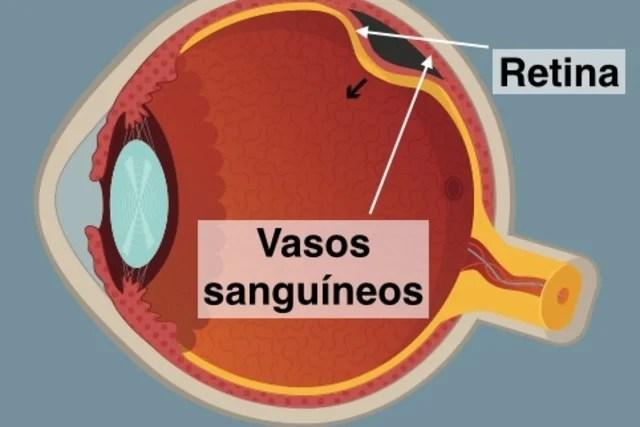 Olho com descolamento da retina