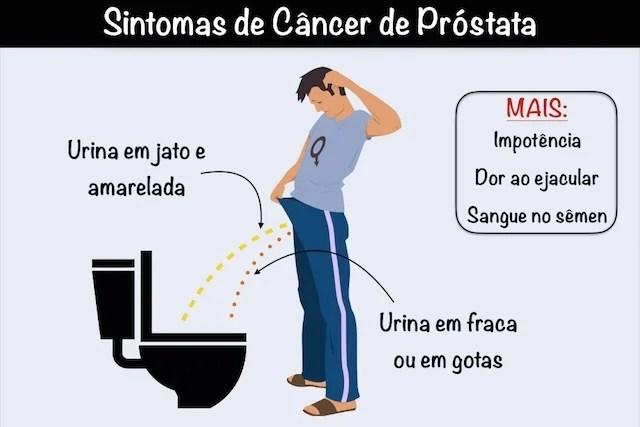 Resultado de imagem para cancer prostata