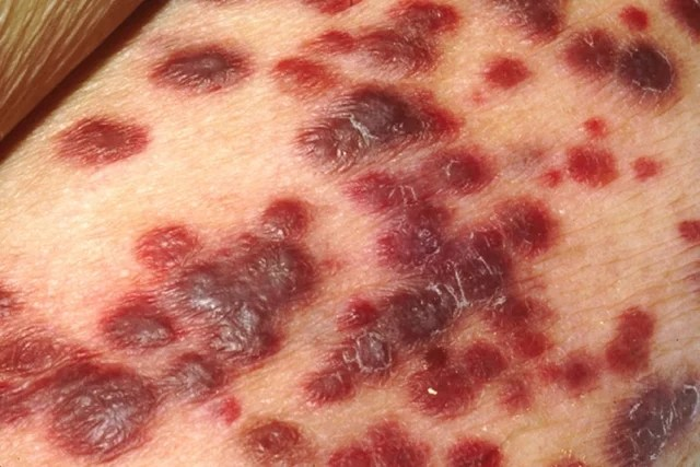 Manchas de Sarcoma de Kaposi pueden indicar SIDA