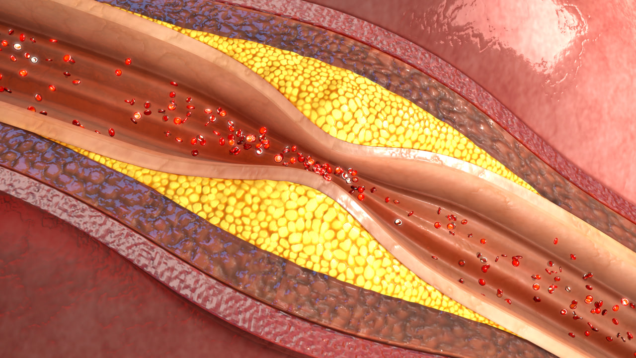 Atherosclerosis 3d Model