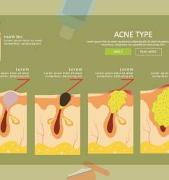 free acne type illustration download free vector art stock graphics images [ 1400 x 980 Pixel ]
