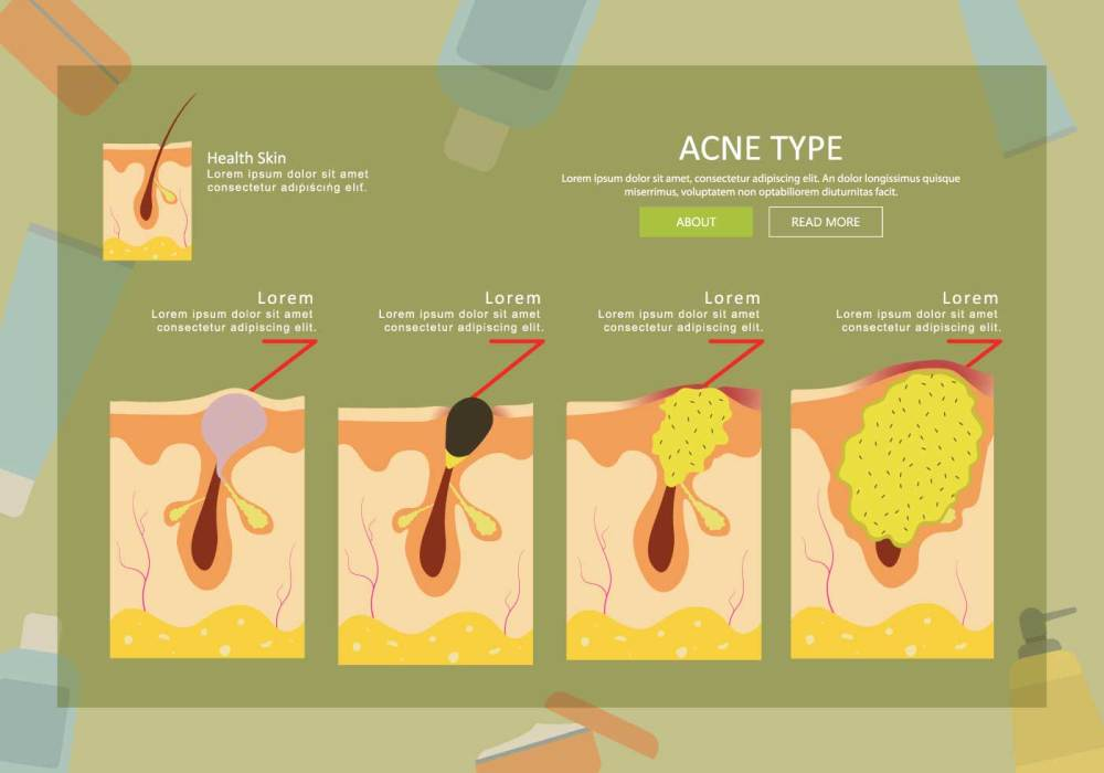 medium resolution of free acne type illustration download free vector art stock graphics images