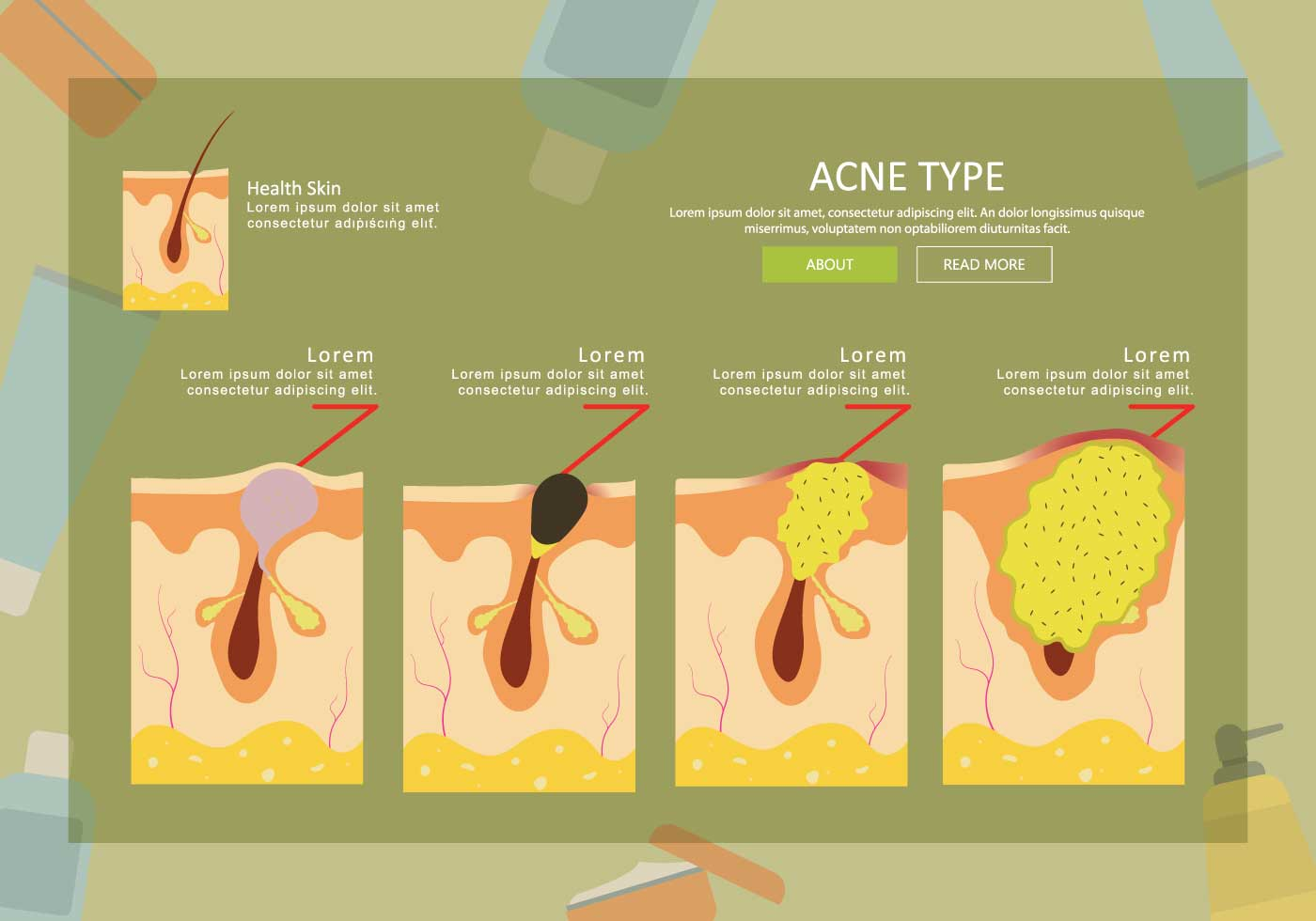 hight resolution of pimple diagram area