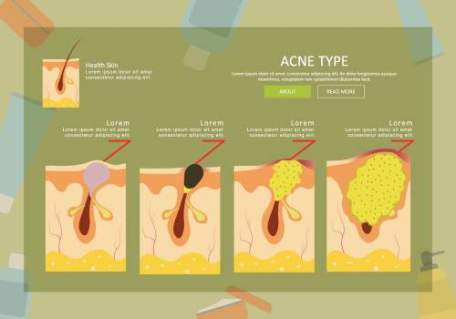 small resolution of free acne type illustration download free vector art stock graphics images