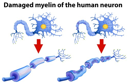 small resolution of dammaged myelin of the human neuron
