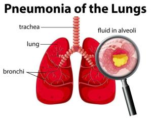 Pneumonia of the Lungs Diagram  Download Free Vector Art