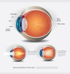 eye anatomy with eye abnormalities vector illustration [ 5000 x 5000 Pixel ]