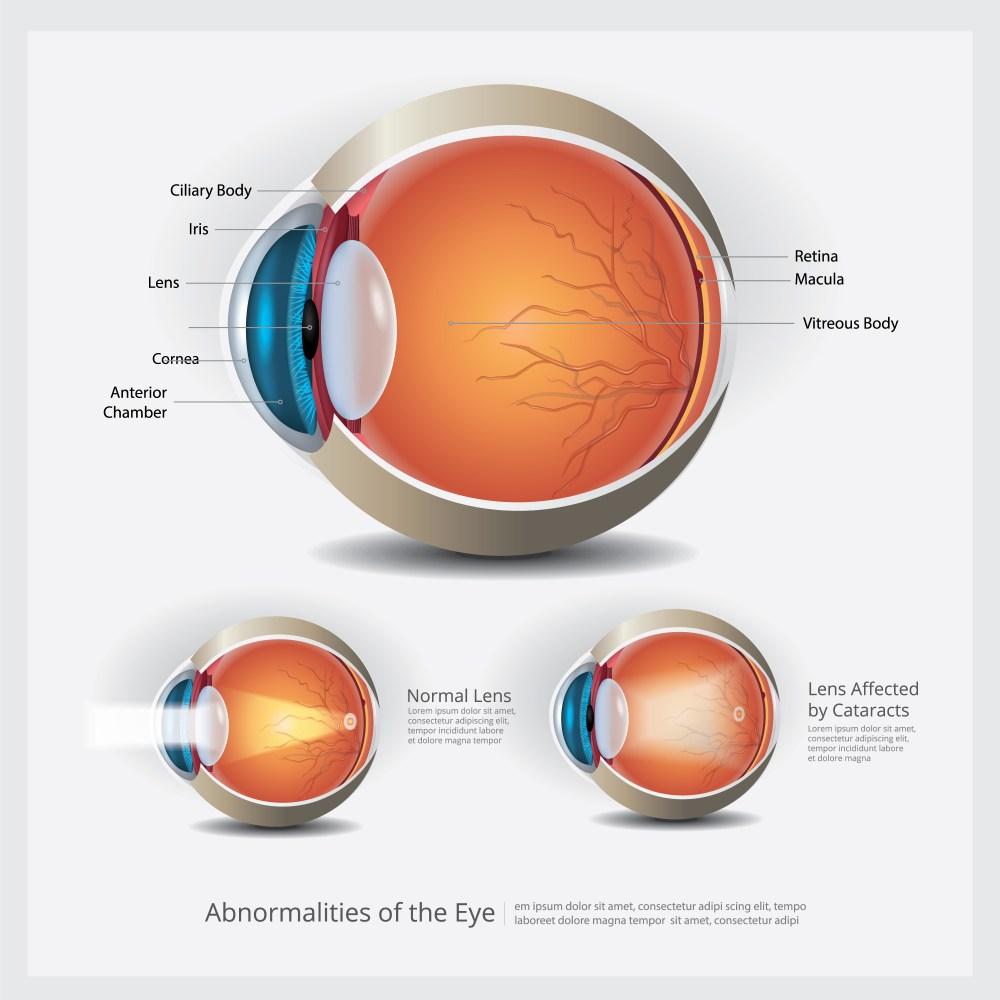 medium resolution of eye anatomy with eye abnormalities vector illustration