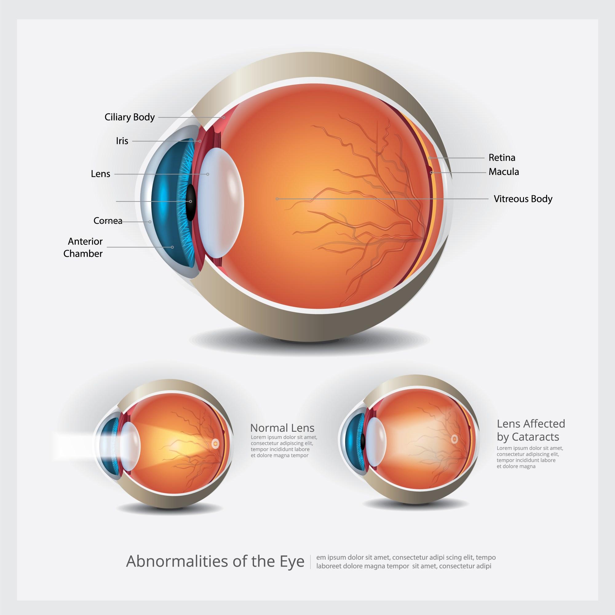 hight resolution of eye anatomy with eye abnormalities vector illustration