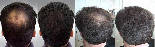 So Zähmst Du Deinen Verdammten Haarwirbel Barber Trends