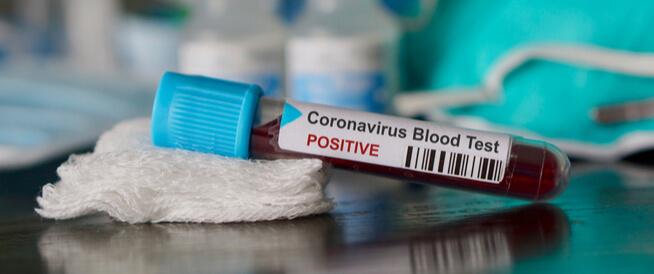 دراسة: آلية محتملة للكشف عن حدة الإصابة بالكورونا (Covid-19)