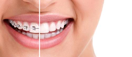كل ما يتعلق بتركيب الأسنان ويب طب