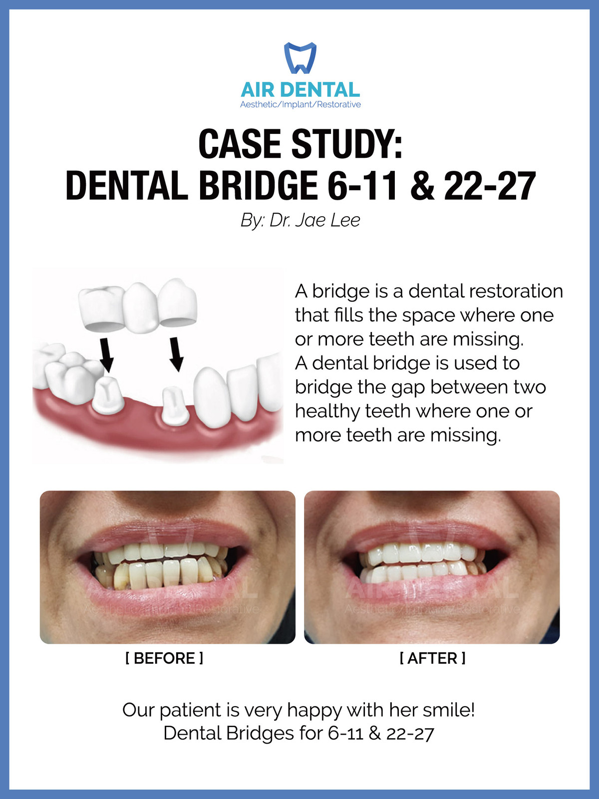 Filing Canine Teeth Before And After : filing, canine, teeth, before, after, Dental, Bridge, 22-27