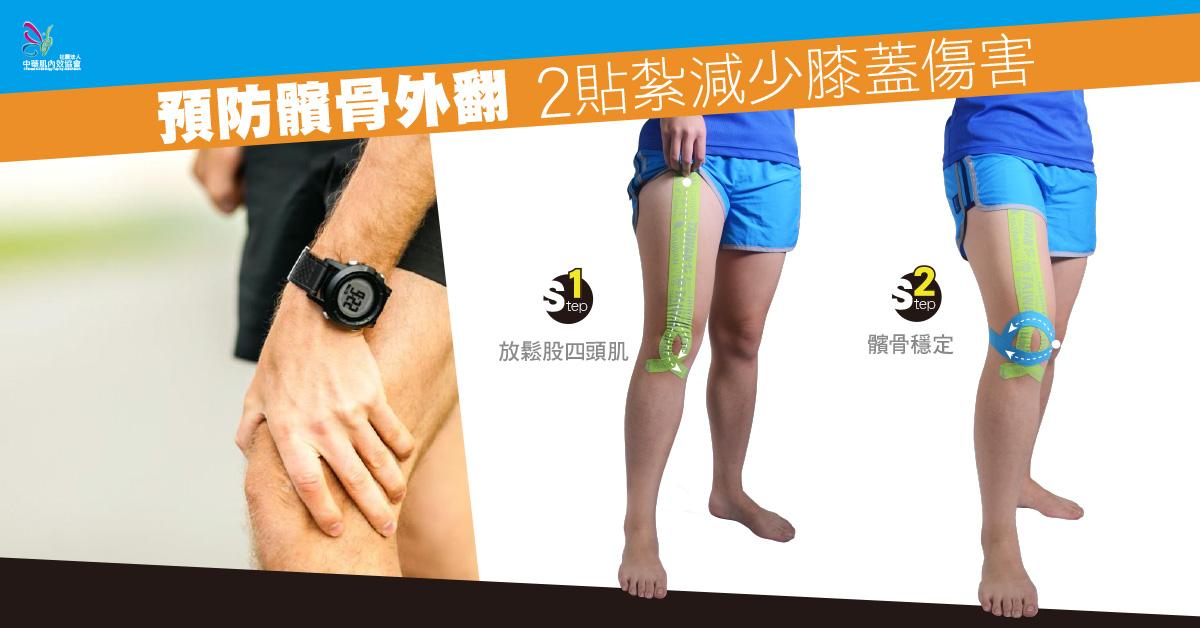 預防髕骨外翻 2貼紮減少膝蓋傷害 | kinesiologytaping