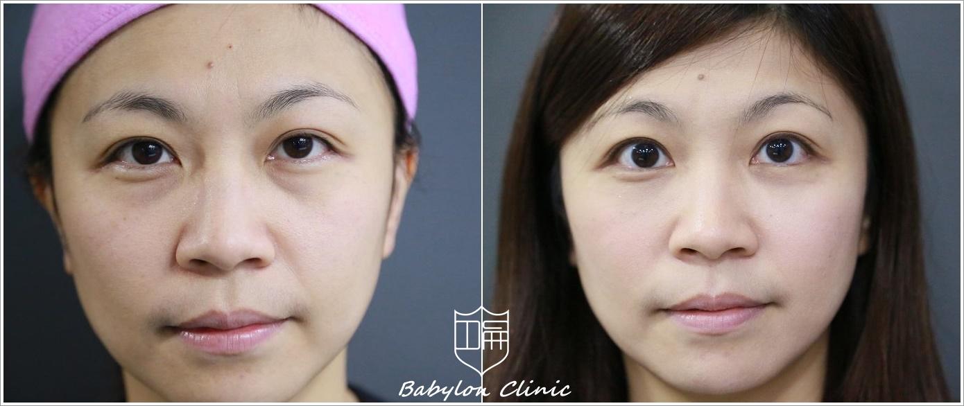眼袋 | 巴比侖診所