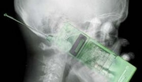 skeleton x-ray with a phone