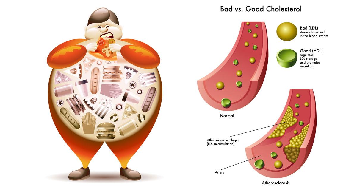 Tener colesterol alto no siempre es malo...