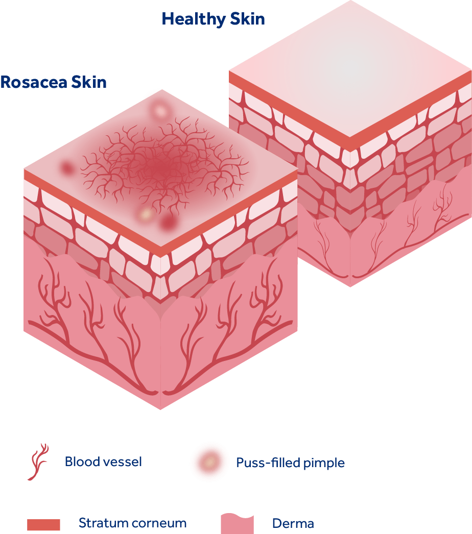 hight resolution of rosacea diagram