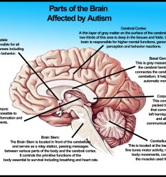 autism diagram [ 3600 x 2700 Pixel ]