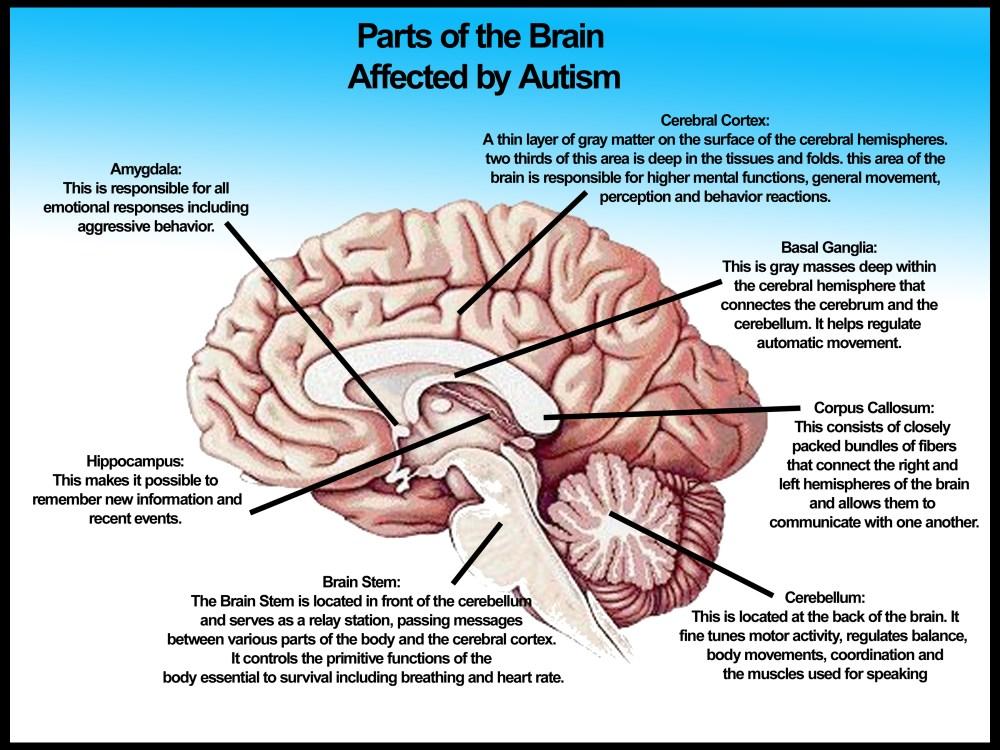 medium resolution of autism diagram