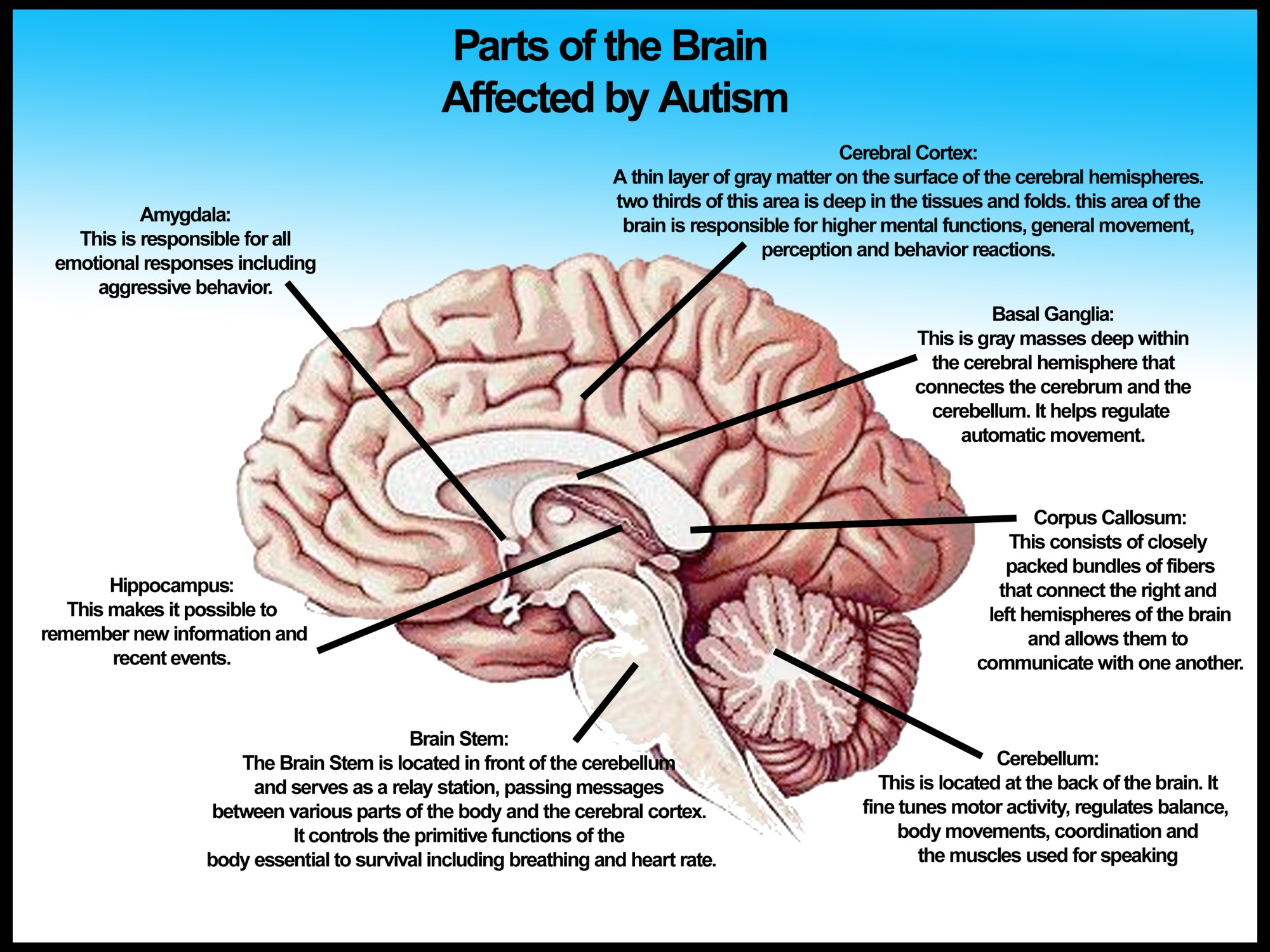 hight resolution of autism diagram