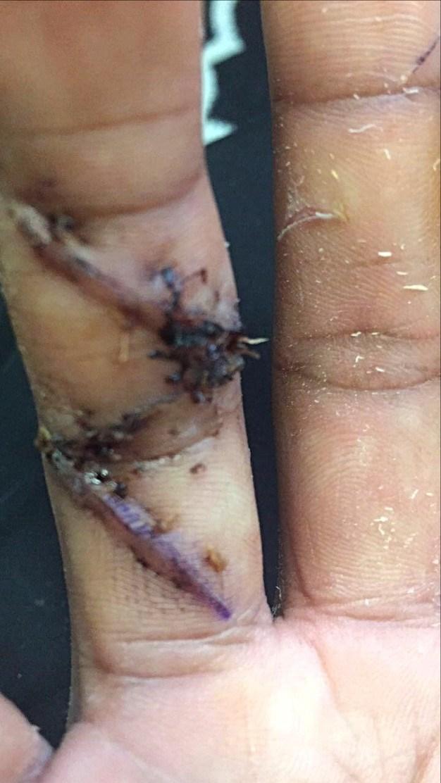 Malik's finger